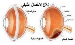 امراض و جراحات الشبكية