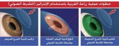 امراض و جراحات القرنية