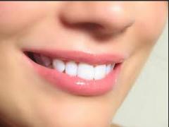تبيض الاسنان بالليزر